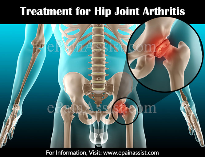 Treatment for Hip Joint Arthritis