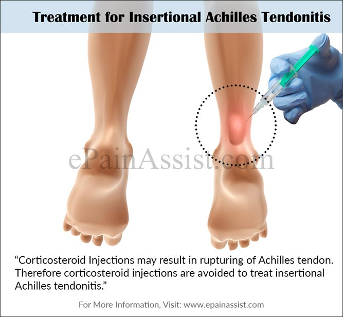 Treatment for Insertional Achilles Tendonitis