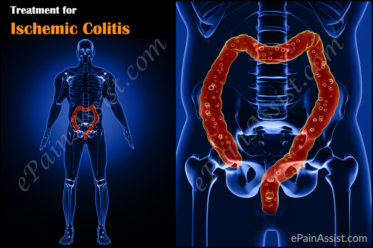 Ischemic Colitis Treatment