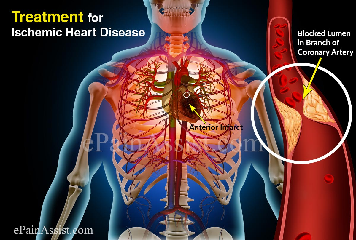 treating cardiac disease