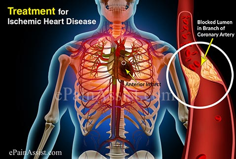 Treatment for Ischemic Heart Disease