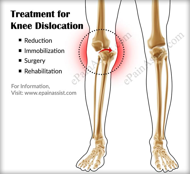 Treatment for Knee Dislocation or Dislocated Knee