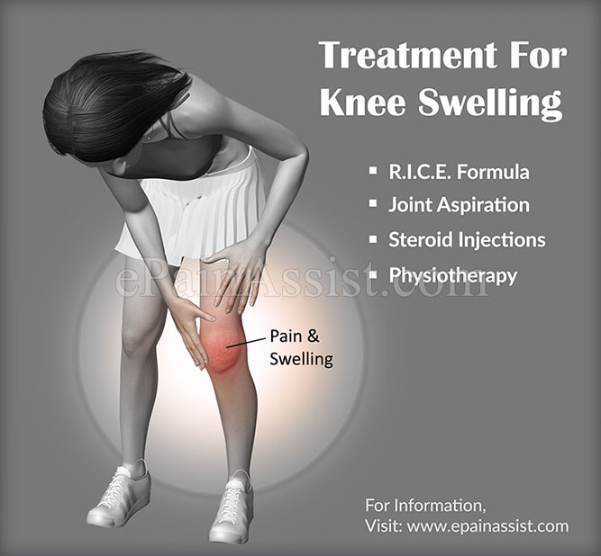 Treatment For Knee Swelling Or Swollen Knee