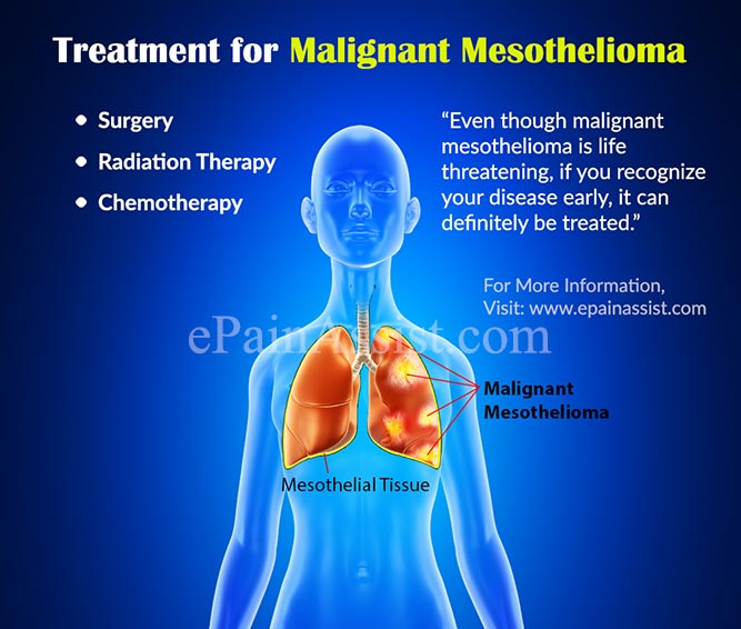 treatment for malignant mesothelioma surgery radiation chemotherapytreatment for malignant mesothelioma surgery, radiation, chemotherapy, clinical trial, coping, home remedies