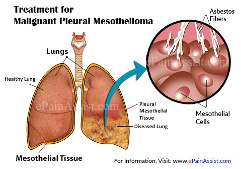 Treatment for Malignant Pleural Mesothelioma