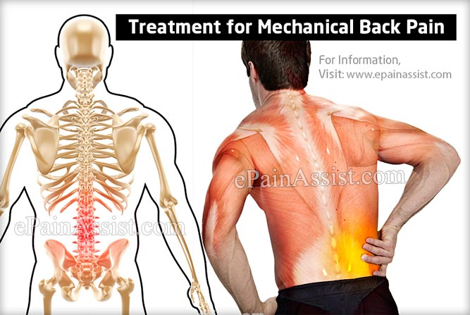 What Can Cause Mechanical Back Pain And How Is It Treated