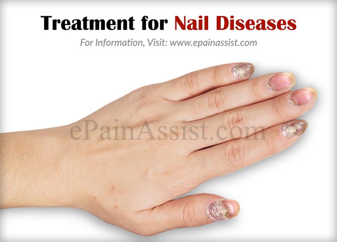 Treatment for Nail Diseases