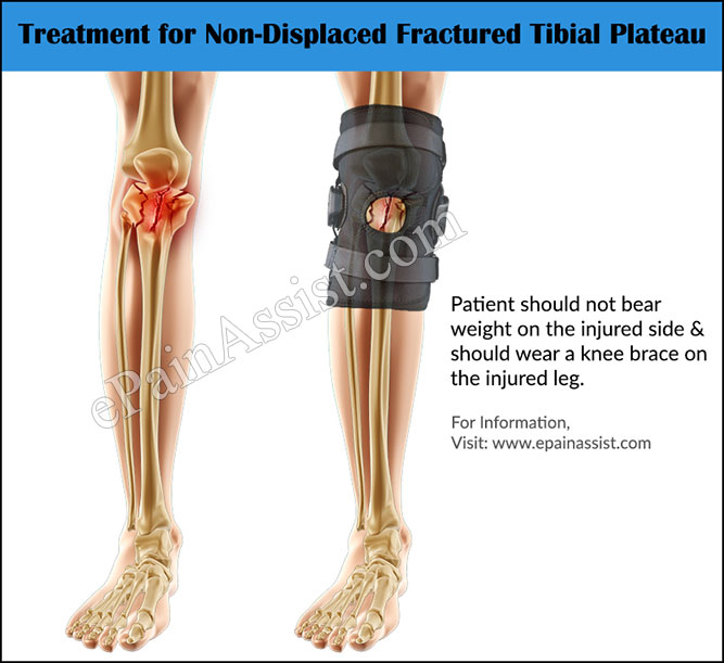 Treatment for Fractured Tibial Plateau or Tibial Plateau Fractures