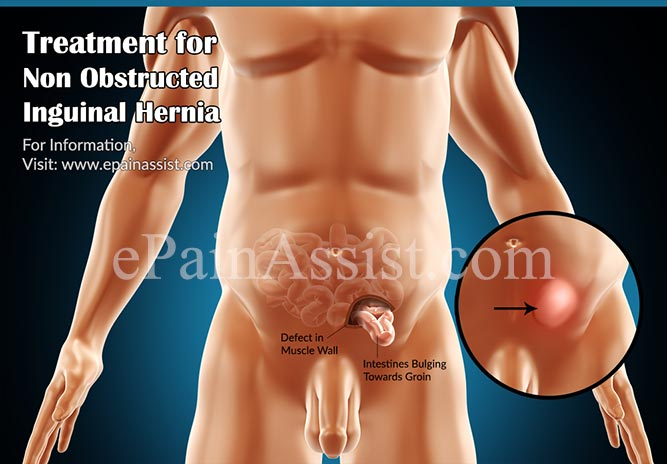 Treatment for Non Obstructed Inguinal Hernia