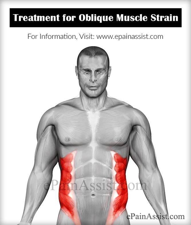 Oblique Muscle Straincausessymptomstreatmentrecovery