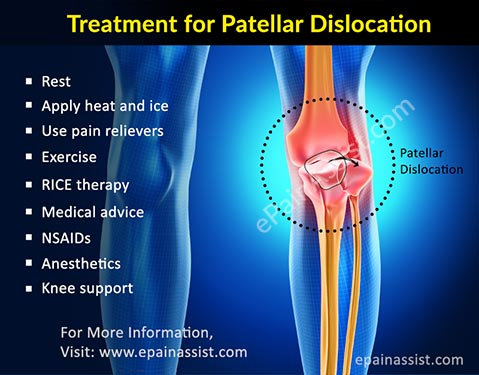 Treatment for Patellar Dislocation or Kneecap Dislocation