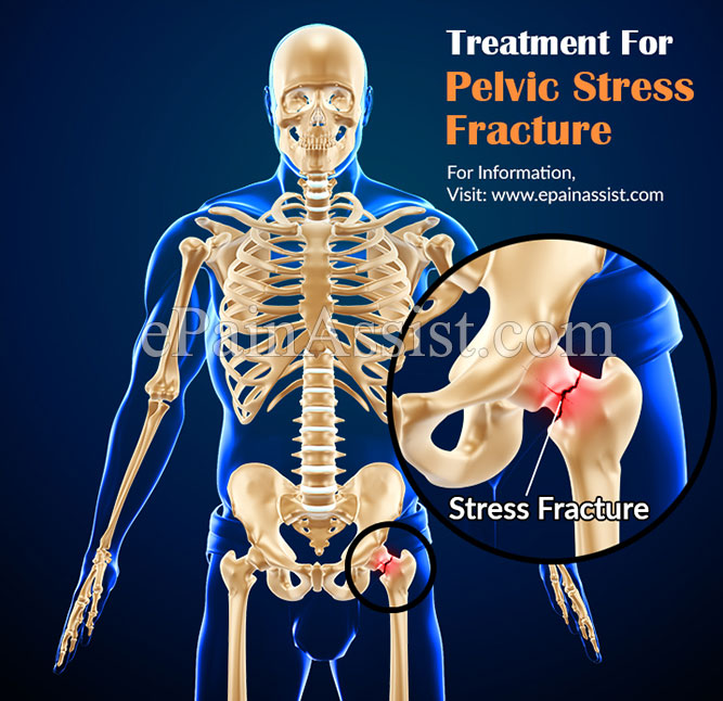 Treatment for Pelvic Stress Fracture