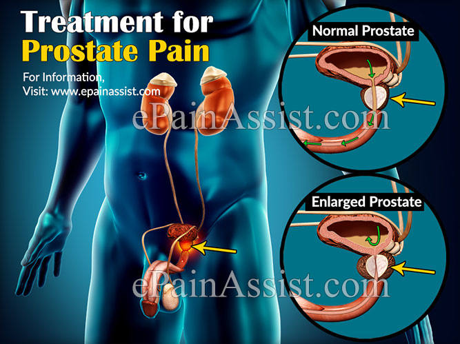 Treatment for Prostate Pain