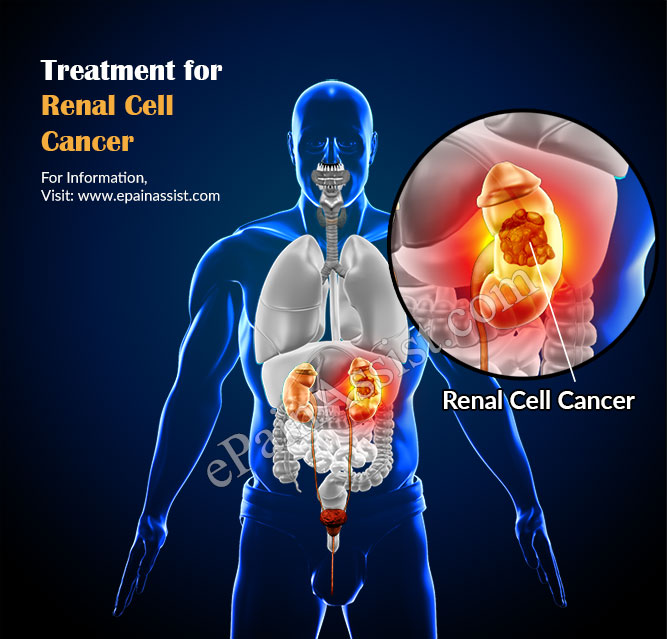 Treatment For Renal Cell Cancer or Hypernephroma
