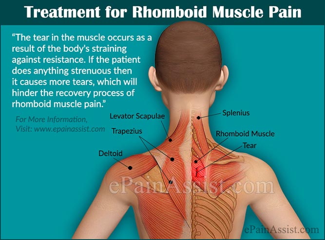 rhomboid muscle pain causes symptoms treatment exercises prevention
