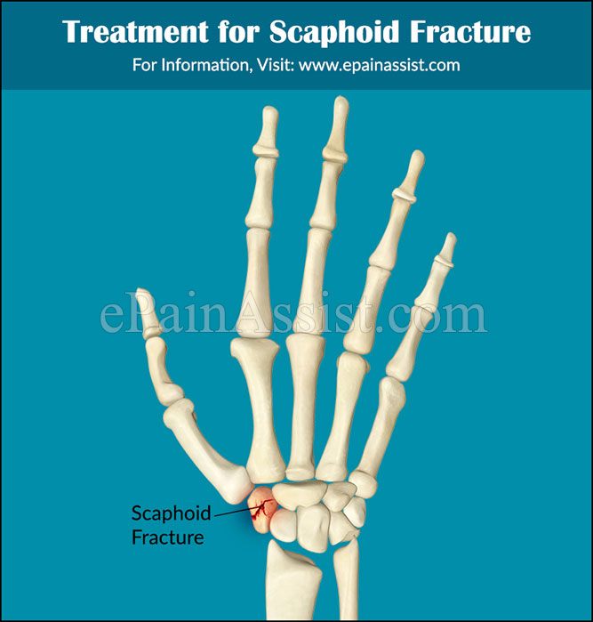 Treatment for Scaphoid Fracture