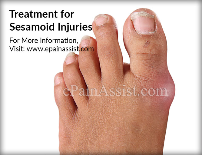 Treatment for Sesamoid Injuries