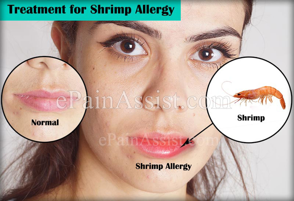 Allergic reaction to lobster symptoms best lobster 2017 for Fish allergy symptoms