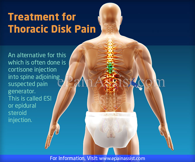 Treatment for Thoracic Disk Pain