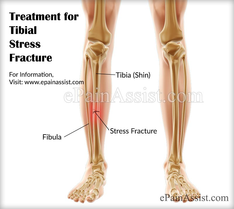 Treatment for Tibial Stress Fracture