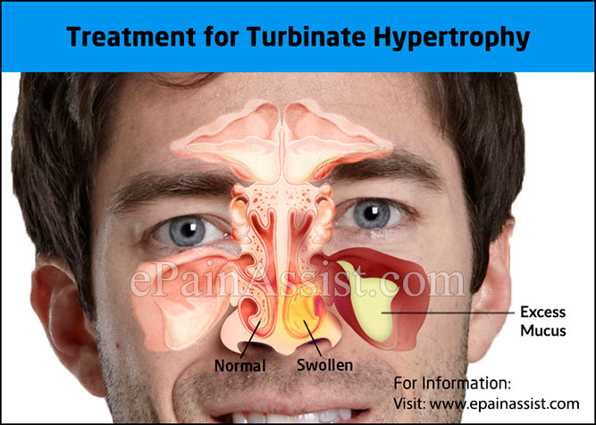 Treatment for Turbinate Hypertrophy