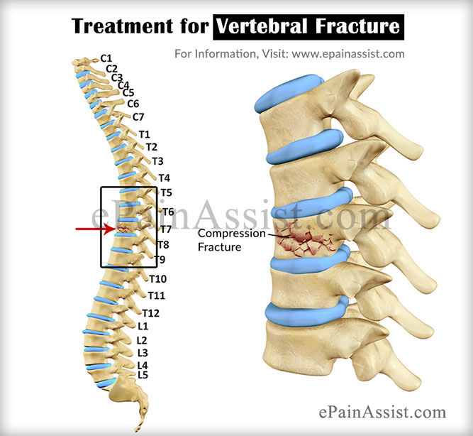 Vertebral Fracture Treatment Surgery Recovery Rehab