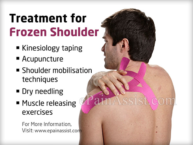 Treatment Frozen Shoulder