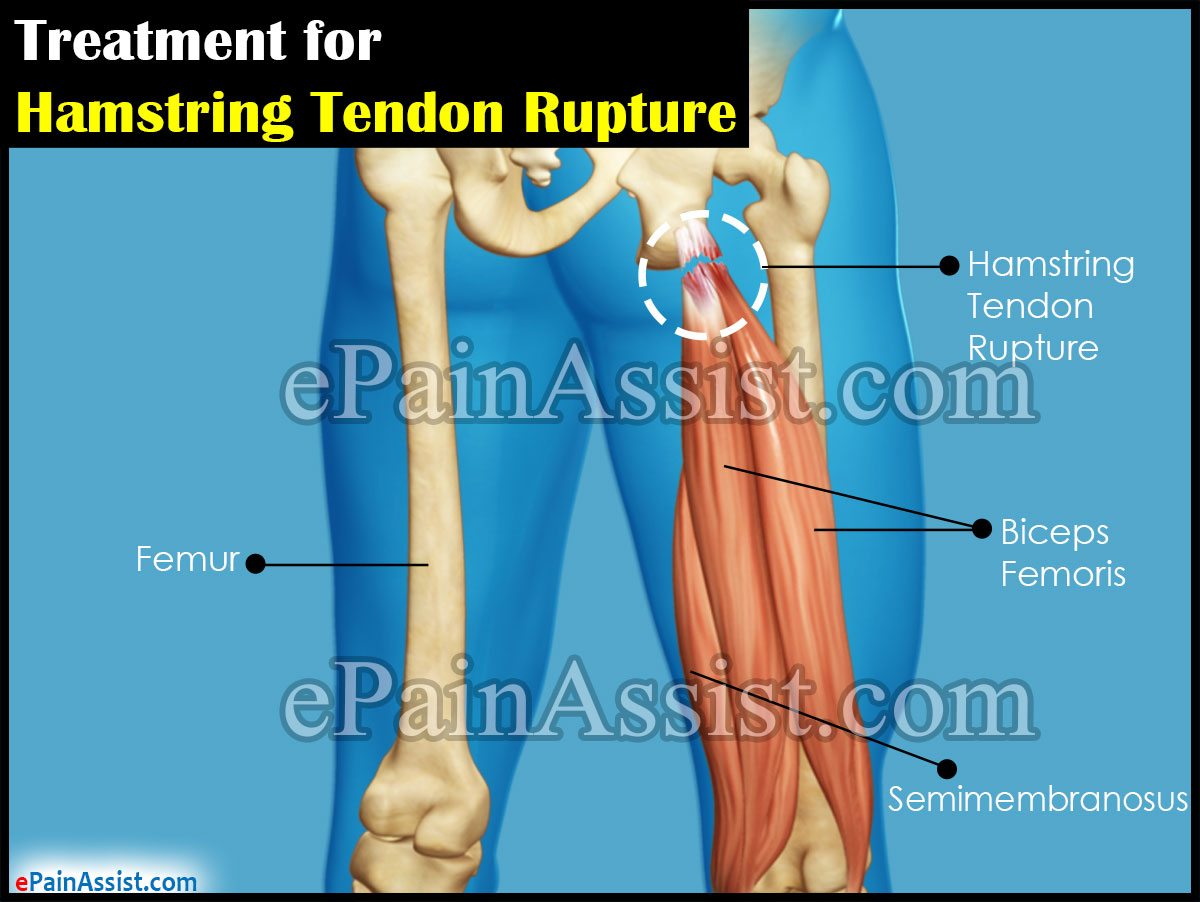treatment for hamstring tendon rupture surgical non surgical