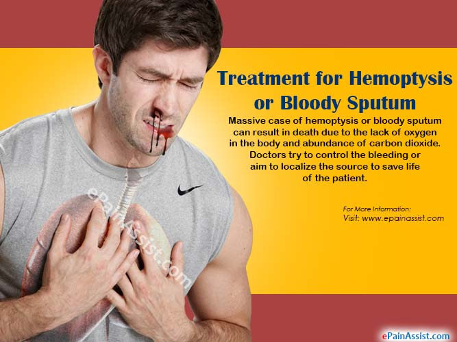 Treatment for Hemoptysis or Bloody Sputum
