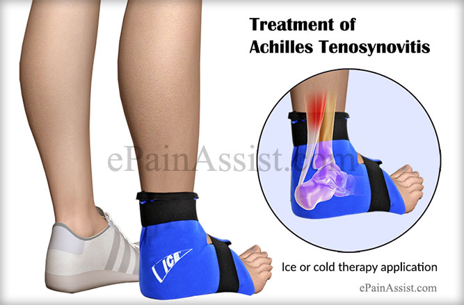 Treatment of Achilles Tenosynovitis or Paratenonitis