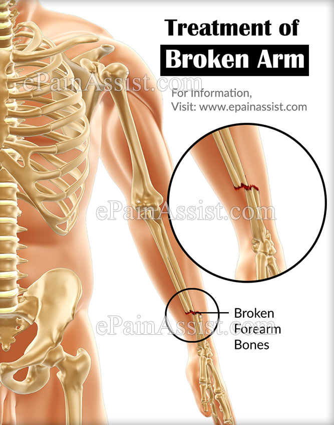 Treatment of Broken Arm or Fractured Arm