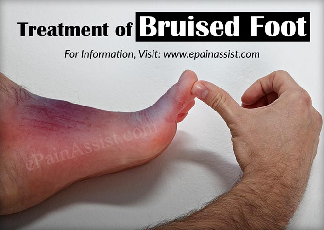 bruised foot causes symptoms treatment healing time rh epainassist com Hematoma Forehead Hematoma On a Line