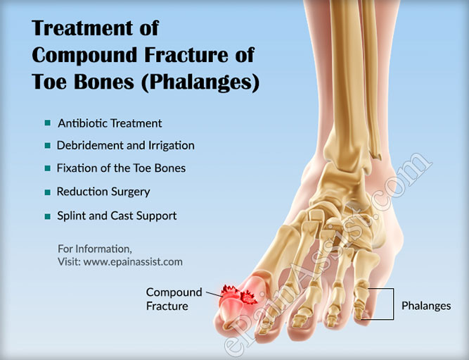 Treatment of Compound Fracture of Toe Bones (Phalanges)