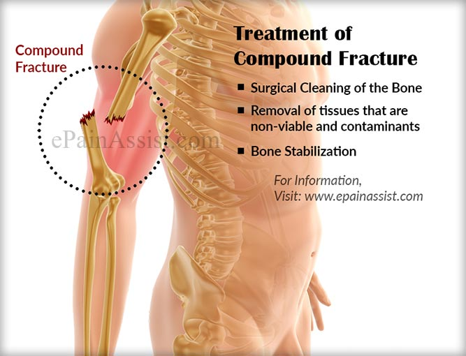what is compound fracture|treatment|recovery|classification|precaution, Human Body