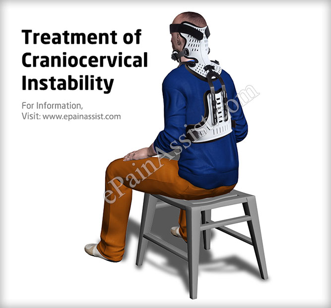 Symptoms of Craniocervical Instability