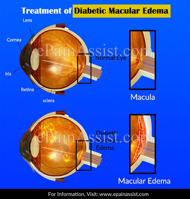What is the Treatment of Diabetic Macular Edema?