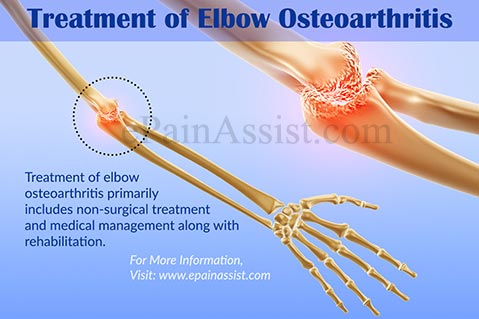 Treatment of Elbow Osteoarthritis