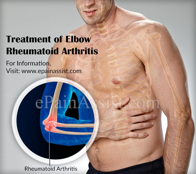 Treatment of Elbow Rheumatoid Arthritis
