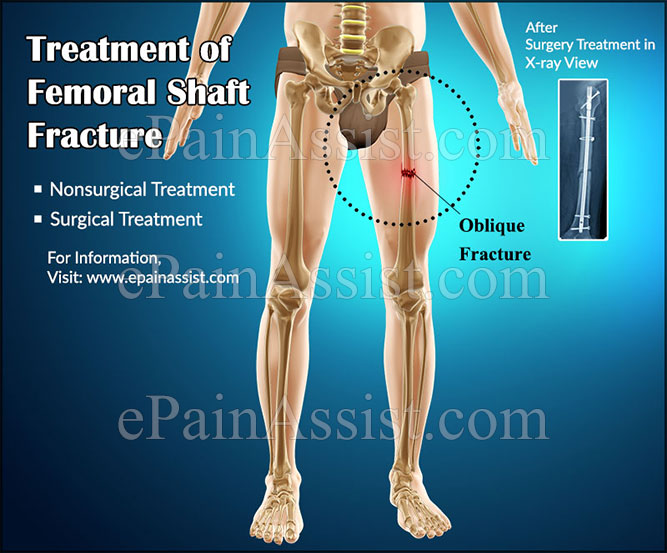 What Is Femoral Shaft Fracturetypescausestreatmenthealing Time