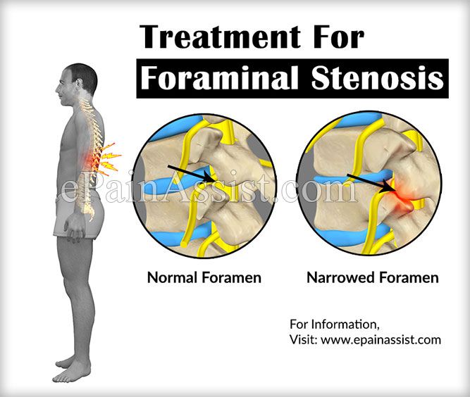 Treatment of Foraminal Stenosis