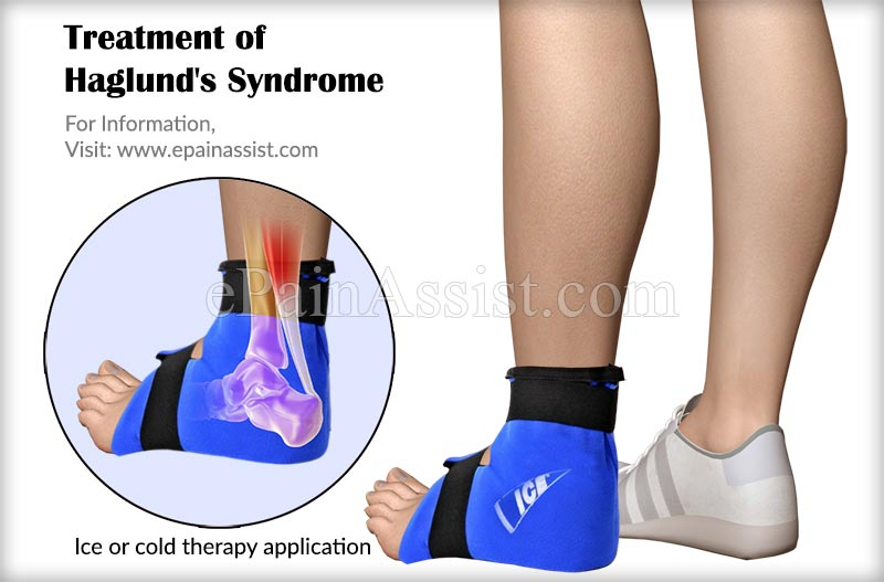 Treatment of Haglund's Syndrome