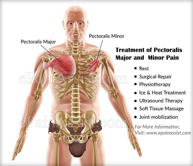 Treatment of Pectoralis Major and Minor Pain