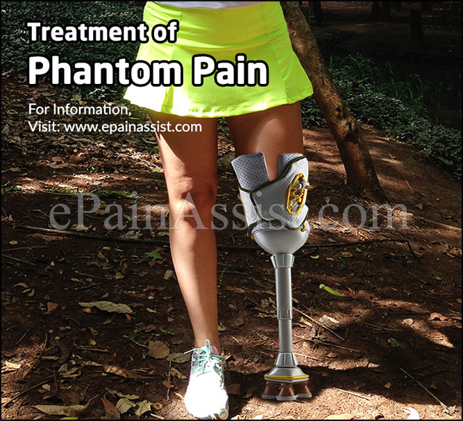 Treatment of Phantom Pain