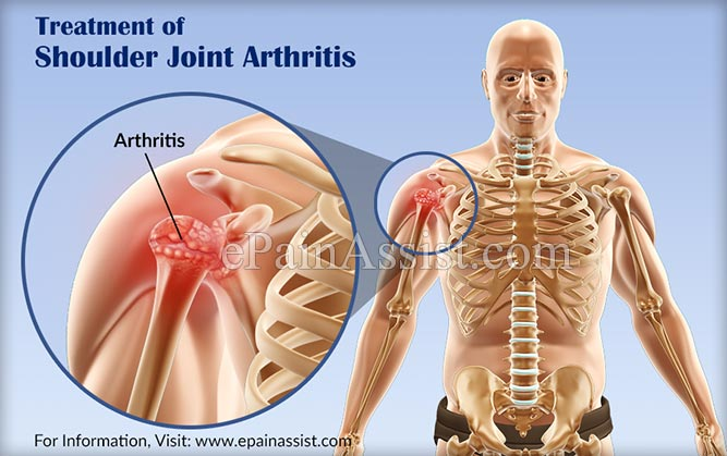 Treatment of Shoulder Joint Arthritis