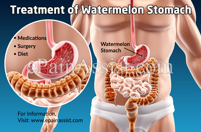 Treatment of Watermelon Stomach or Gastric Antral Vascular Ectasia (GAVE)