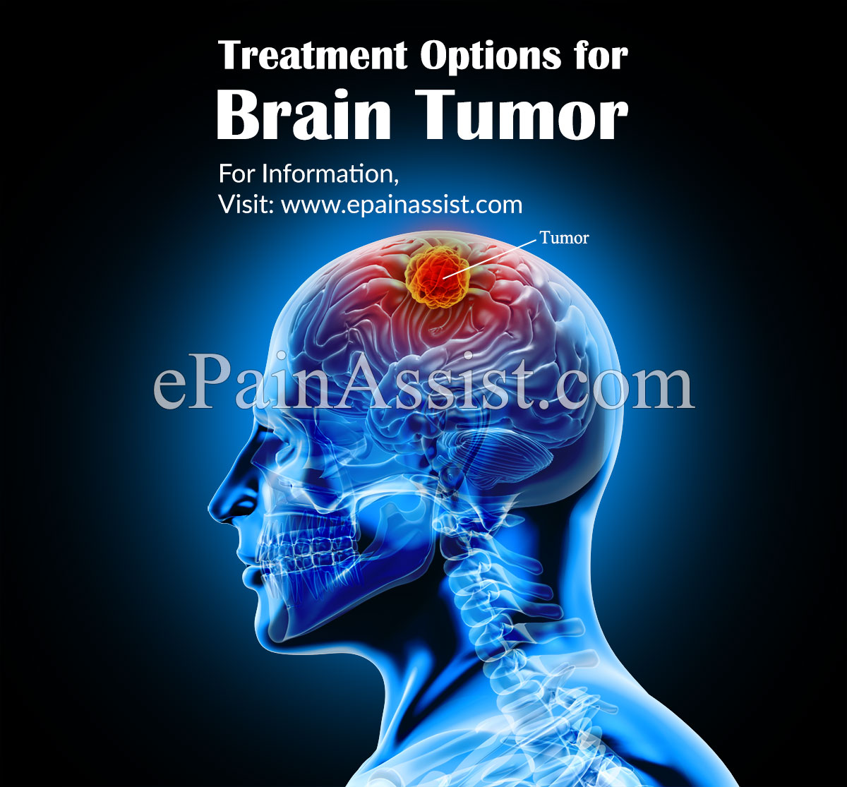 Treatment Options for Brain Tumor