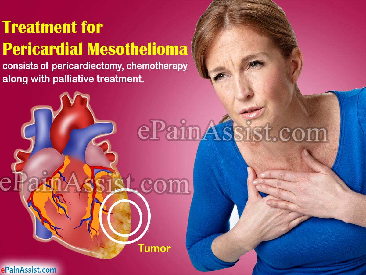 Treatment for Pericardial Mesothelioma