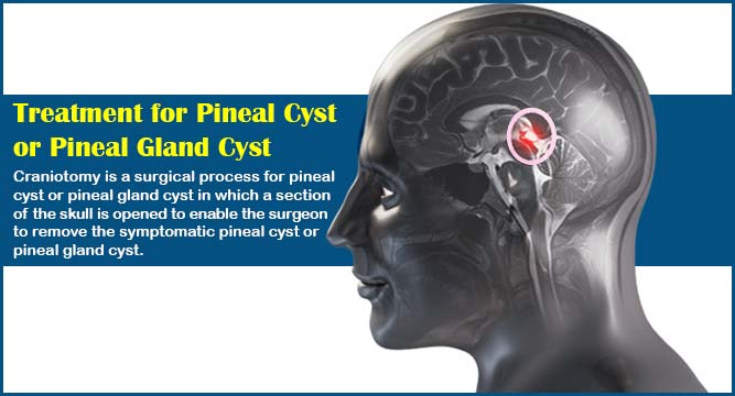 Treatment for Pineal Cyst or Pineal Gland Cyst