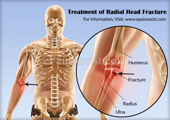 Treatment of Radial Head Fracture