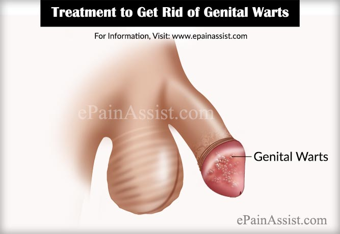 genita warts treatment